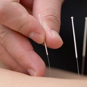 Afbeelding-acupunctuur